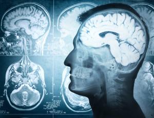 To, že bolest vychází z mozku, ještě neznamená, že se vše děje jen v hlavě.  www.shutterstock.com
